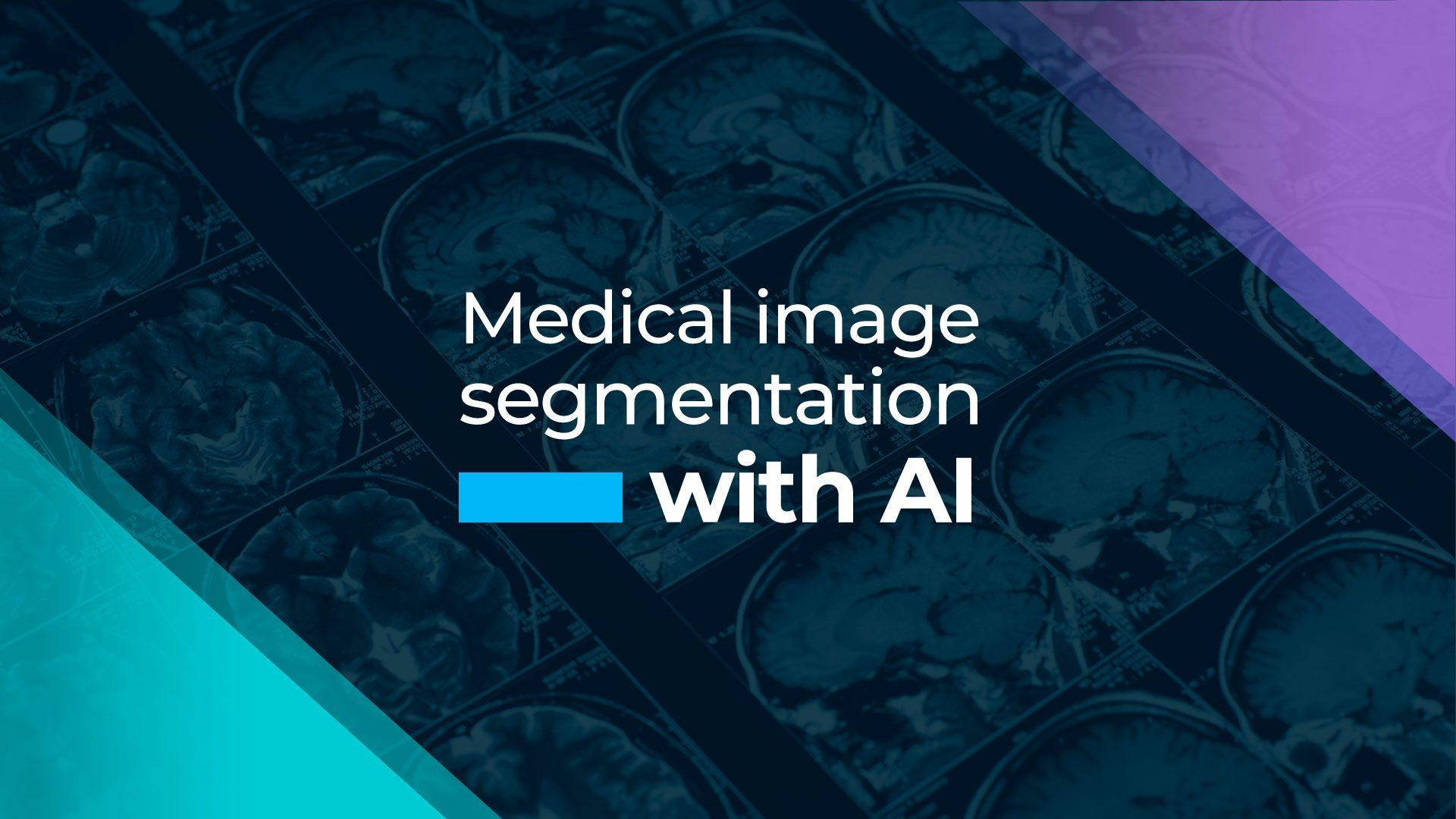 Medical image segmentation with AI
